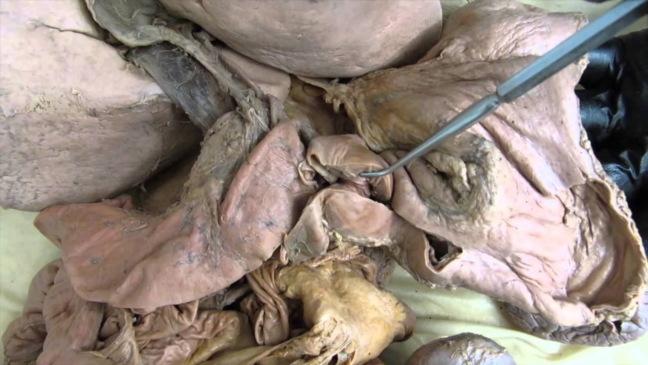 what does bile do? - youtube, Cephalic Vein