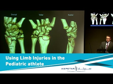 Upper limb injuries in the pediatric athlete: diagnosis and treatment