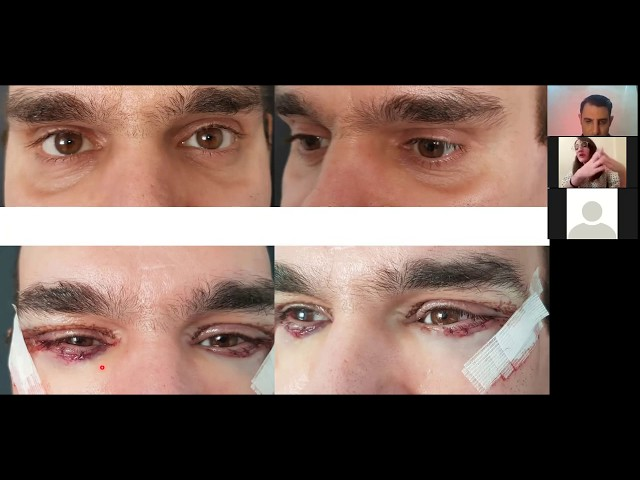 #blepharoplasty #βλεφαροπλαστική  Blefaroplasty live video
