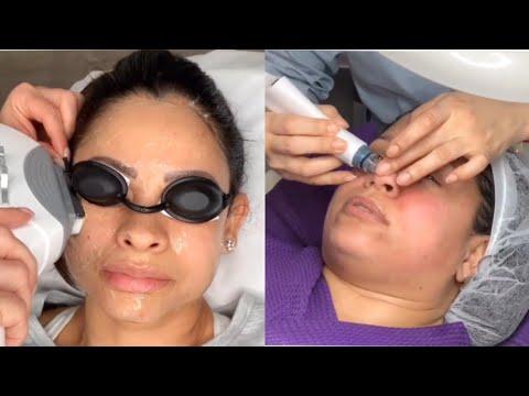 skin treatments type