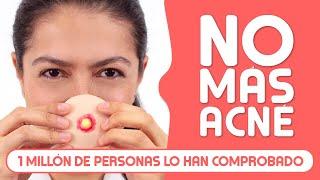 ¿Cómo Quitar el ACNÉ? Remedios Caseros y Médicos