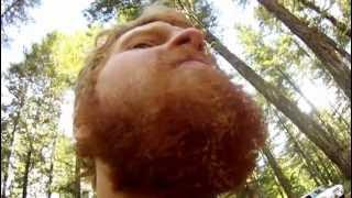 Examining the Singed Beard