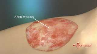 Medical Animation | Wound Healing