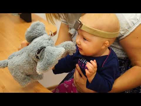 Chloe Bella Cochlear Baha 4 Billateral Microtia Atresia 4 Month Old Hearing Test
