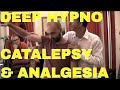 Instant non verbal Hypnosis techniques - Deep Healing Trance state, Catalepsy and Hypno Anaglesia!