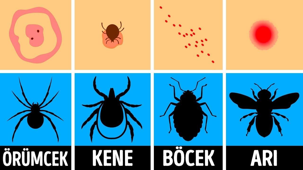 Download Böcek Isırığı Nasıl Anlaşılır Ve Isırıldığınızda Ne Yapmalıdır