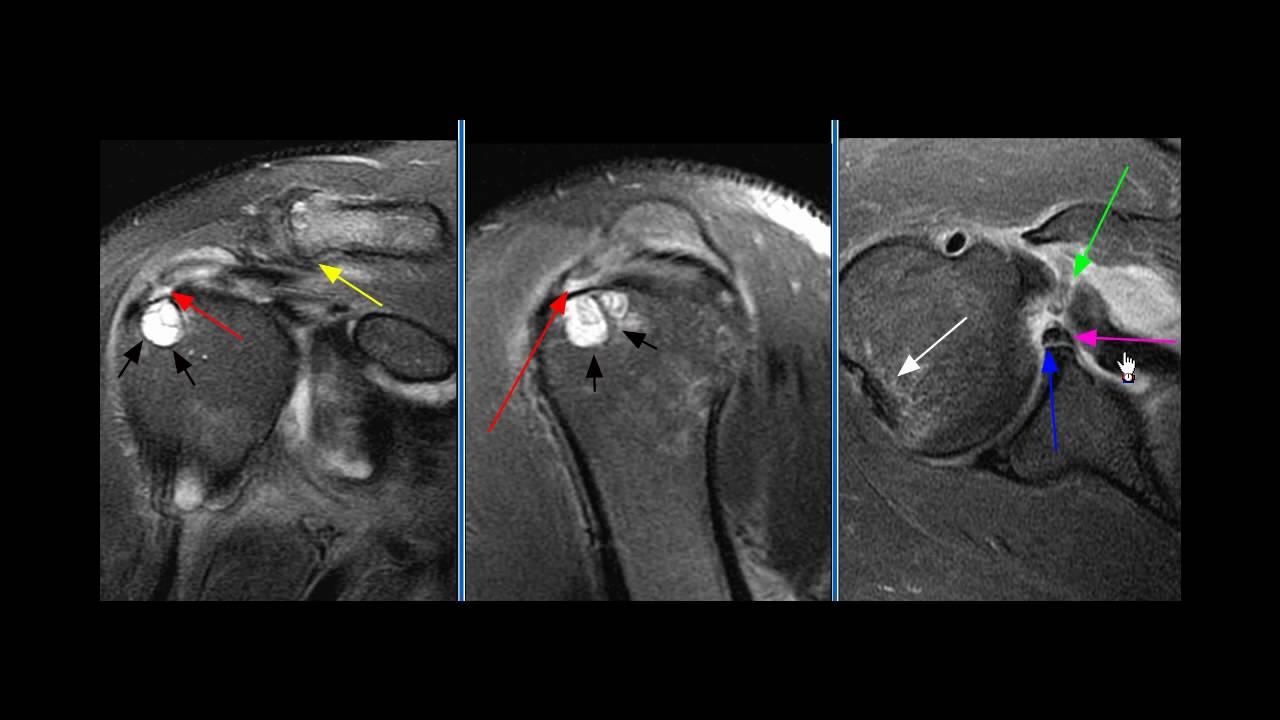 Shoulder MRI Case 3 - YouTube
