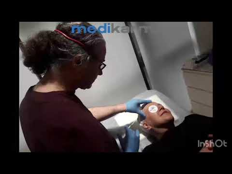 BOTOX injection lifting eyebrows by Dr. Taner