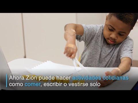 zion,-el-primer-niño-en-recibir-un-doble-trasplante-de-manos