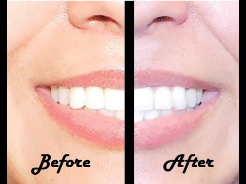 How to Whiten Your Teeth With Crest Noticeably Whitestrips Melissa