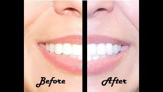 How to Whiten Your Teeth With Crest Noticeably Whitestrips   Melissa Athalia