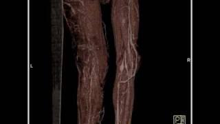 Trenaunay Klippel Weber actualizado Síndrome de