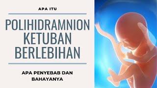 Hi Moms, Down Syndrome adalah kelainan kromosom yang ternyata bisa dideteksi semenjak dalam kandunga.