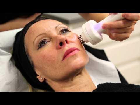 Radiofrequency Skin Tightening Lift-Shape
