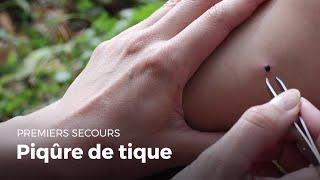 Premiers secours : Piqure de tique | Secourisme