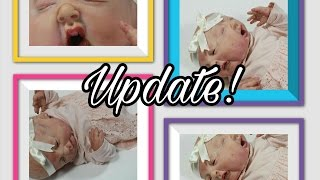 Coming Soon! Two Faced BABY Update! Coinjoned Twins Born With Two FACES One Body