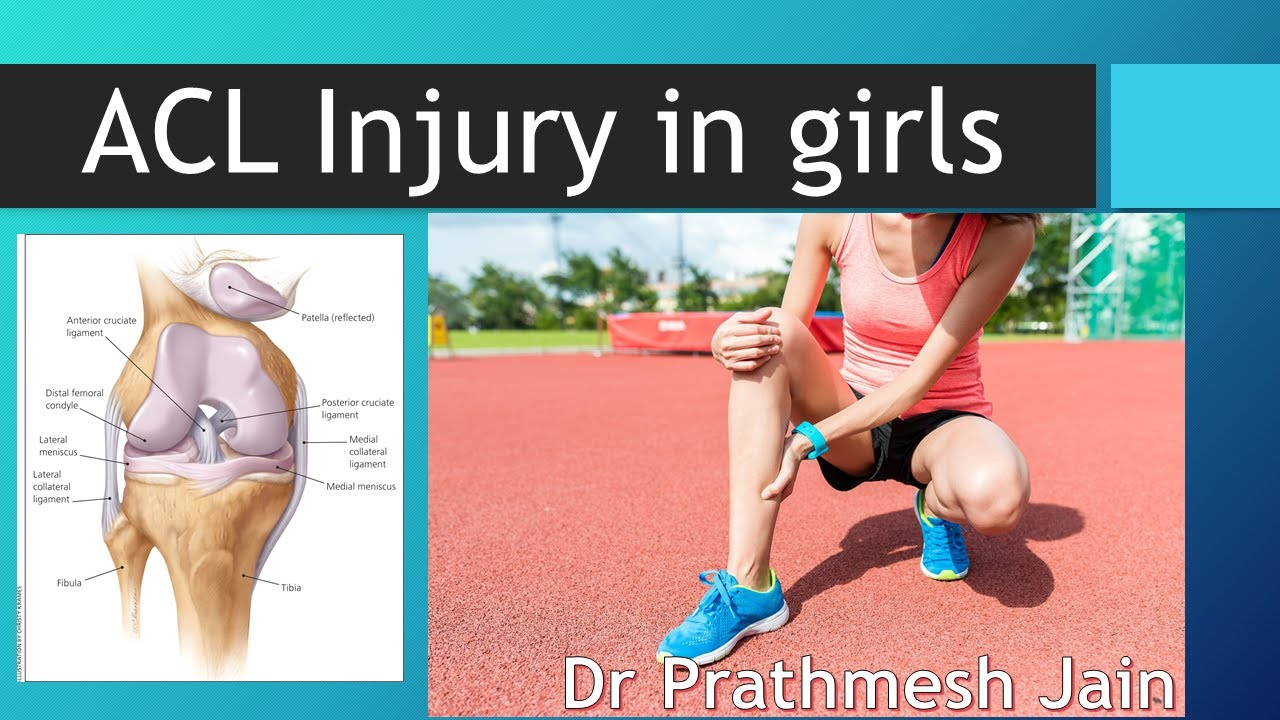 ACL Injury in girls why its More Common (English)