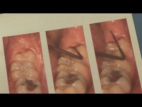 How To Alleviate Infected Wisdom Tooth