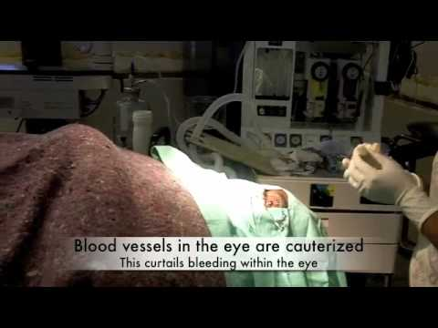 Pterygium surgery @ The Eye Clinic at the Mandeville regional hospital, Jamaica