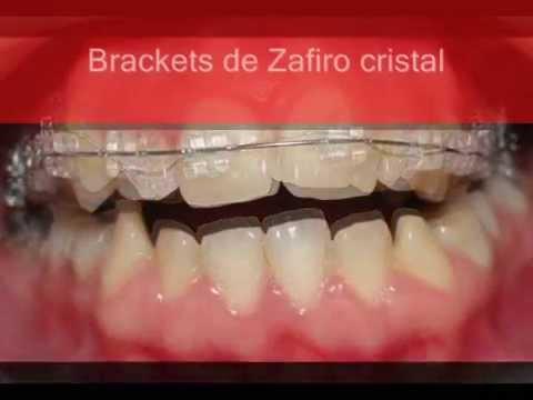 ORTODONCIA ESTETICA TIPOS DE BRACKETS. Dr Lombardi.Braces type AESTHETICS  zafiro, braces