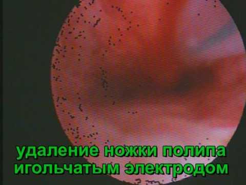 диатермокоагуляция шейки матки что это такое