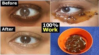 ఇది రాస్తే మీ కంటి చుట్టూ నలుపు 100% పోతుంది | Permanently Cure  Eye Dark Circles | Dark Circles