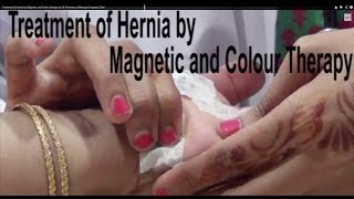 Treatment of Hernia by Magnetic and Colour therapy by Dr Poornima at Bensups Hospital, Delhi
