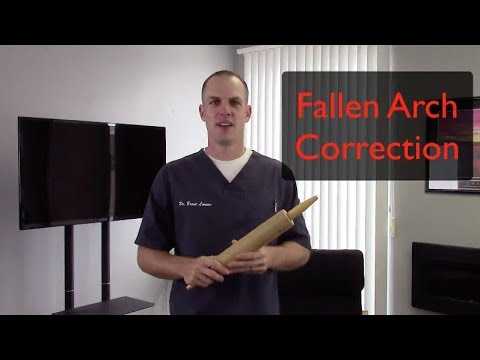 how to fix fallen arches