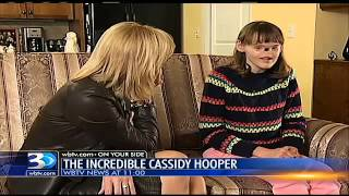 cassidy hooper teenage girl born without nose and eyes