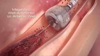 Тромбэктомия при инфаркте миокарда Capture MegaVac Mechanical Thrombectomy System