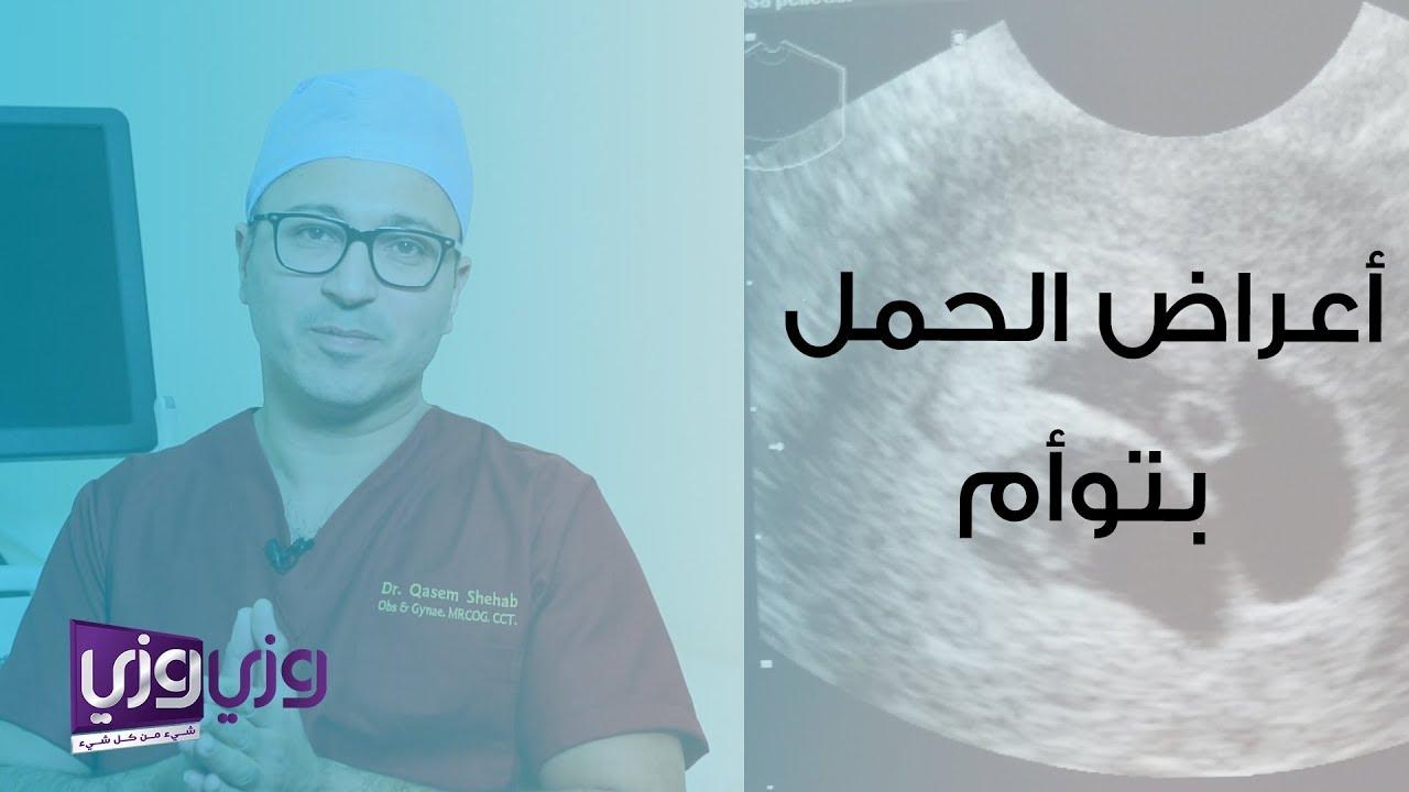 أعراض الحمل بتوأم ومخاطره Youtube