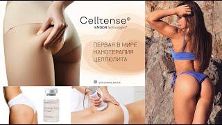 Обзор антицеллюлитной процедуры celltense- Арина Скоромная