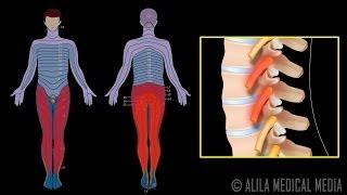 Nervenwurzel Block Injektion Animation-Video