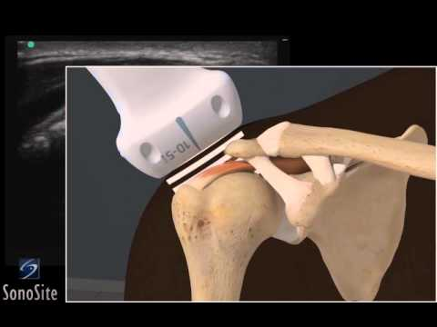 3D How To: Ultrasound Exam of Acromial Impingement of the Shoulder - SonoSite Ultrasound thumbnail