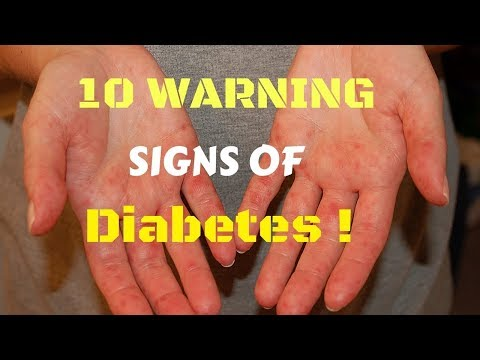 Diabetes Warning Signs, Live sa Bicol - ni Doc Willie Ong #433