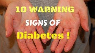 Diabetes Warning Signs, Live sa Bicol - ni Doc Willie Ong #433