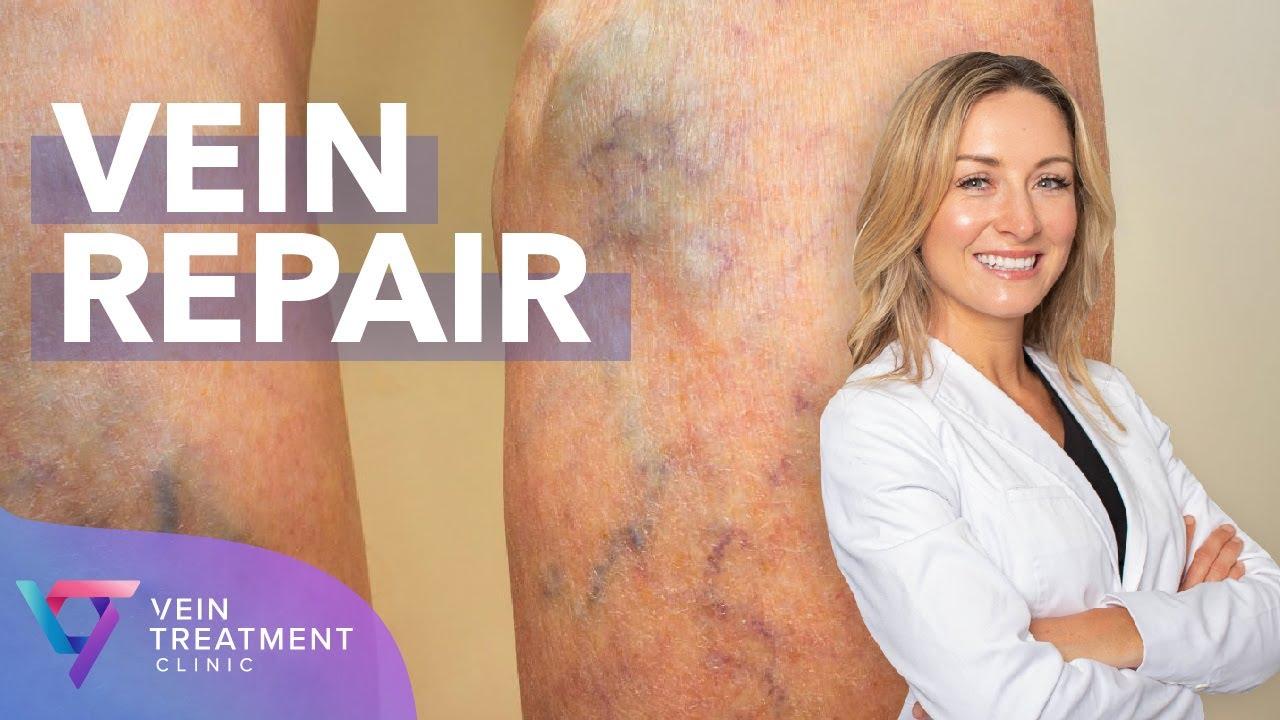 Medical Center: Vein Repair | Spider and Varicose Vein Treatment Center