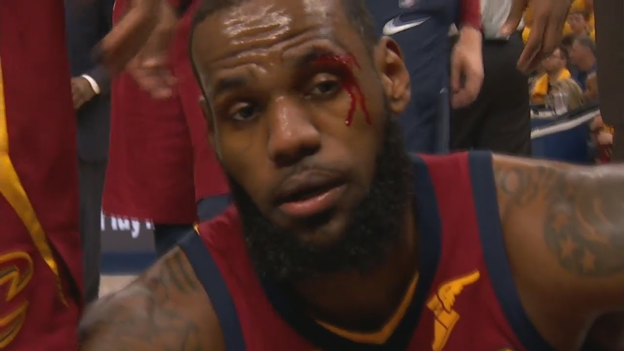 Lebron James Eye Injury After Getting Elbowed In The Face Cavaliers Vs Pacers Game 6 Youtube