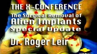 SURGICAL REMOVAL OF ALIEN IMPLANTS - Special Update - Dr. Roger Leir