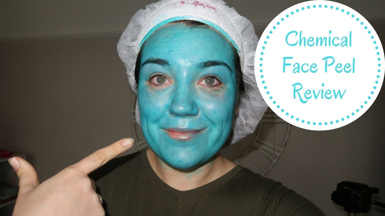OBAGI BLUE CHEMICAL PEEL | REVIEW