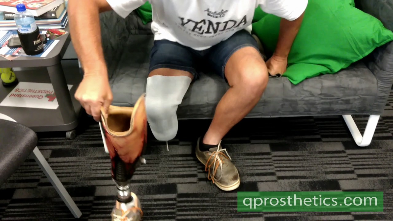 donning of the prosthesis with liner and pin lock