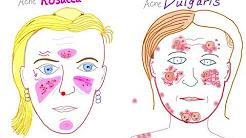 hqdefault - Acne Vulgaris And Rosacea