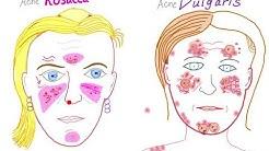 hqdefault - Acne Rosacea Versus Vulgaris