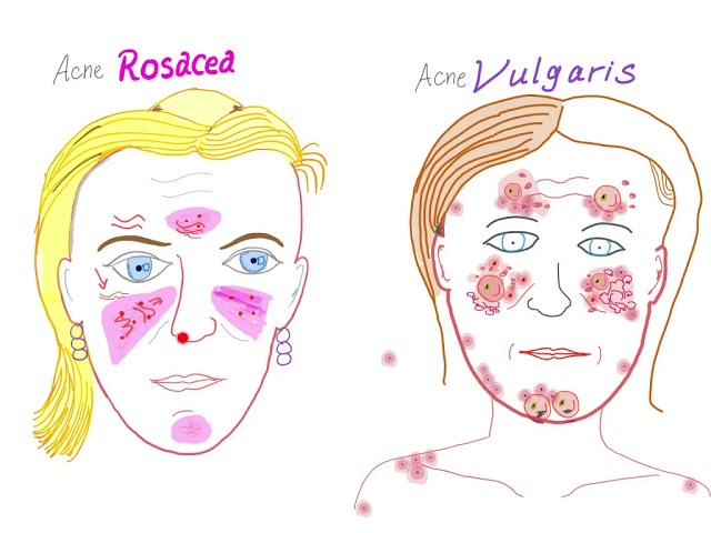 Acne Vulgaris Vs Acne Rosacea Youtube