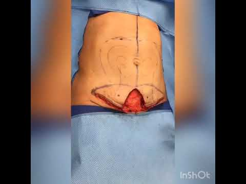 Mini Tummy Tuck In 60 Seconds Dr Anthony Youn Youtube