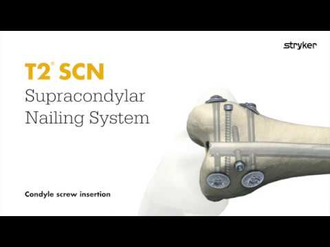 Stryker Trauma & Extremities | Distal Femoral Nailing | T2 Supracondylar (SCN) Nail Condyle