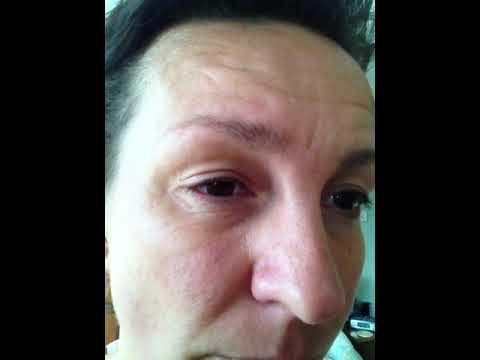 Excellent hemi facial spasms have