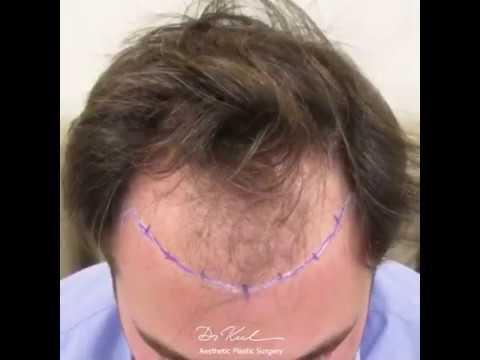 F.U.E & N.I.T 3000 Grafts🧑🏻🦲 👉👨🏻 Saç Ekimi / Hair Transplantation
