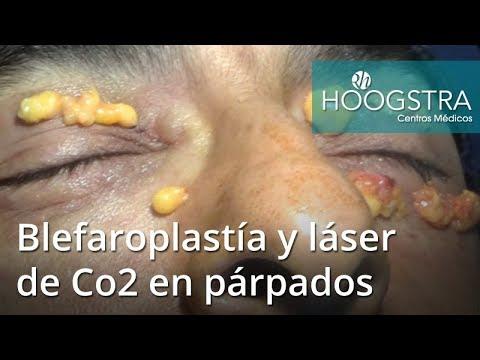 Blefaroplastía y láser de Co2 en párpados (18010)