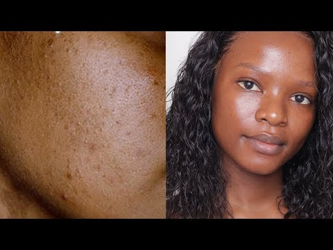 HOW I CLEARED MY SKIN / DARK SPOTS MILD ACNE AND HYPERPIGMENTATION.